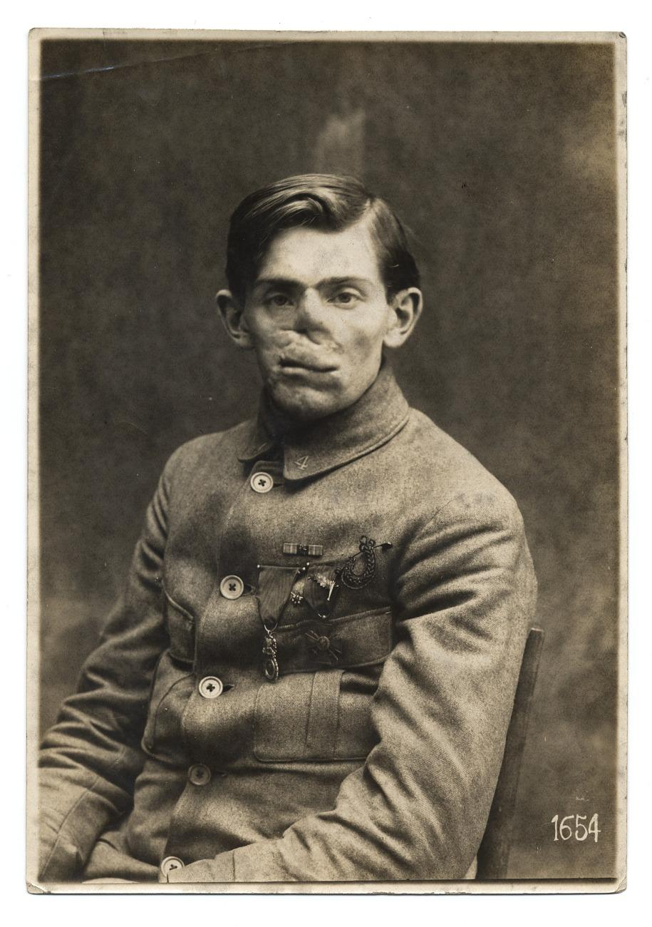American Red Cross, WWI soldier facial reconstruction documentation photograph, about 1920