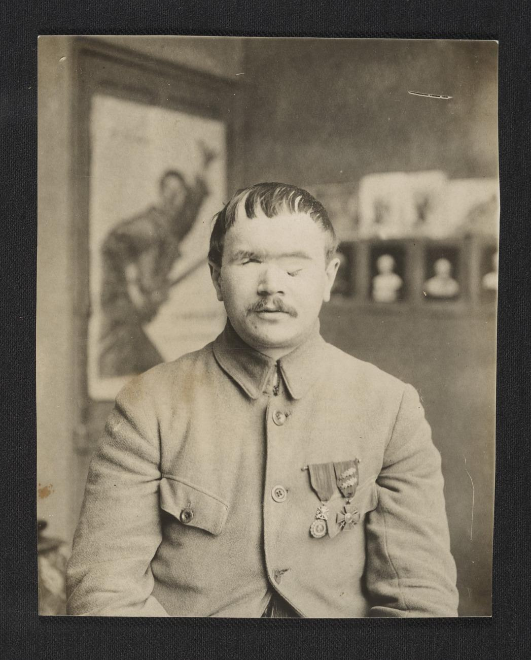 American Red Cross, A World War I soldier before facial reconstruction